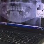 Ortopantomografo digitale per radiografie panoramiche studio dottor Sartore